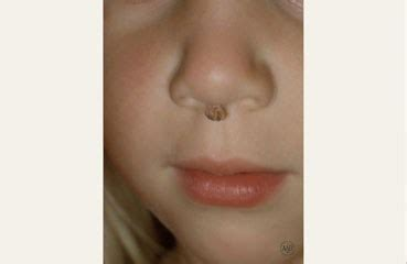 warts in the nose picture 17