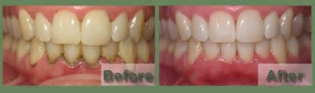 round rock teeth whitening picture 15