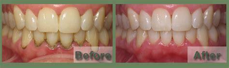 austin teeth whitening picture 9