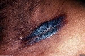 eczema darkens 's skin picture 3