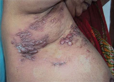 colon cancer with skin metastases picture 2