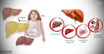 fatty liver disease symptoms picture 17