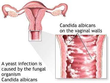 candida yeast infection picture 15