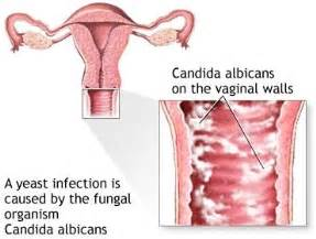 itching and vaginal yeast infection picture 9