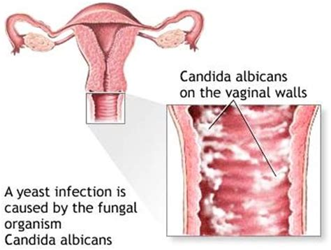do vaginal warts come out during a yeast infection picture 1