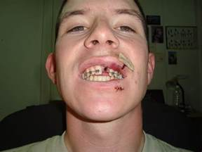 fighter gets teeth knocked out picture 2