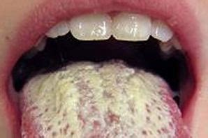 yeast infection mental illness picture 7