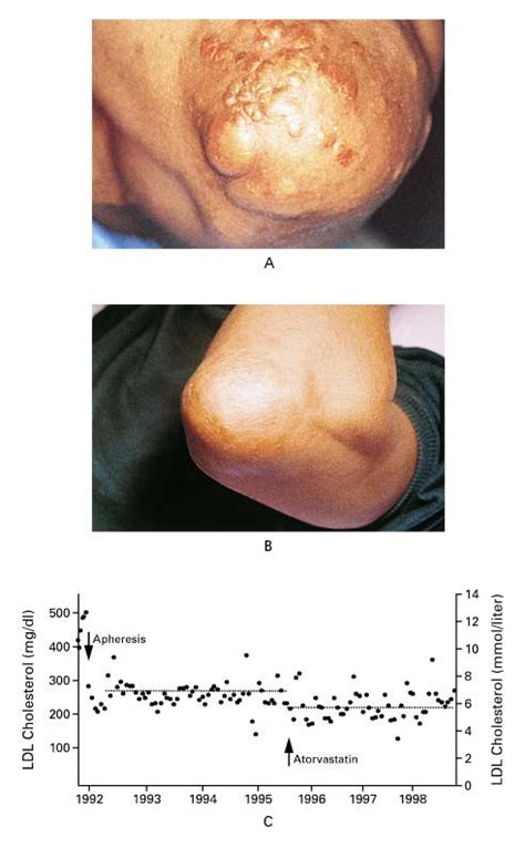 Hypercholesterolenia picture 2