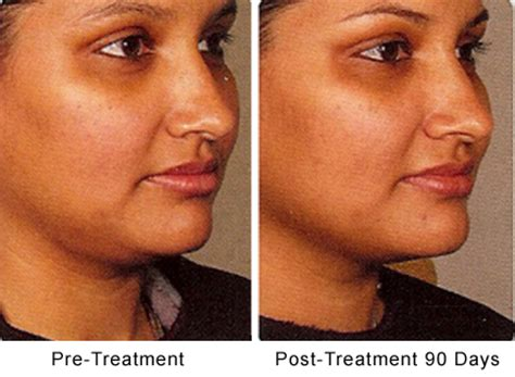 surgical removal of stretch marks picture 9