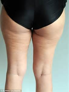 Get rid of dimple and cellulite in picture 9