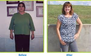 bariatrics weight loss picture 9