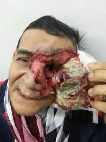 human skin deformities picture 2