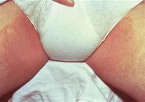 rash chafing genital skin fold picture 9