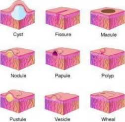 meaning of skin lesions picture 6