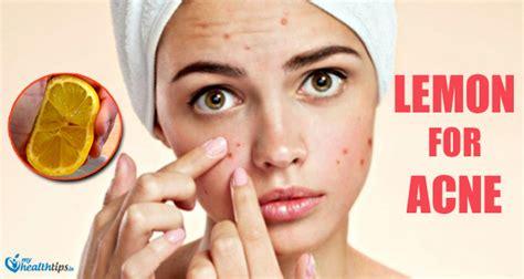 acne cks picture 2