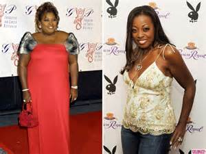 star jones weight loss surgery picture 5