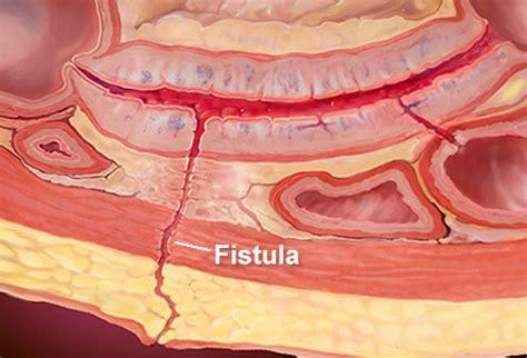 colon fistula surgery picture 9