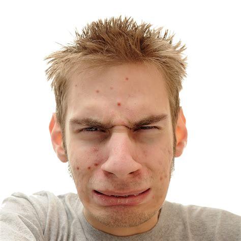 men acne picture 1