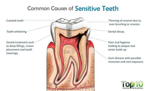 what to do for sensitive teeth picture 2