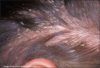cure sa maraming hair fall picture 14