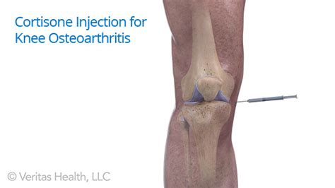 arthritis joint injections picture 9