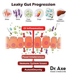 intestinal bacteria that makes you gain weight picture 11