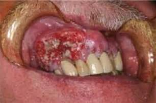mouth cancer picture 3