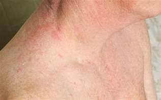 bayport wisconsin herpes picture 2