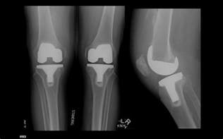 mrsa knee joint picture 6