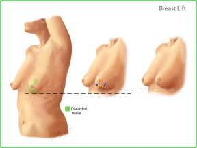 photo non surgical breast enhancement picture 15