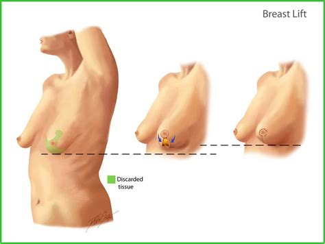 breast enlargement and lift picture 2