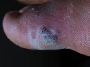 warts removal with computer compressed air picture 13