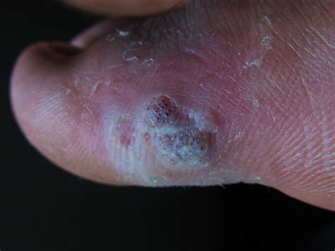 a picture of plantar warts picture 14