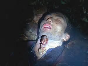 vampire fungus in stomach wikipedia picture 10