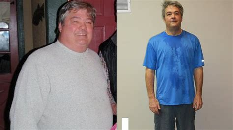diabetic weight loss picture 2