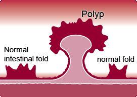 calcium and colon polyps picture 19