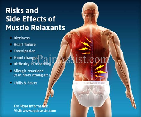 are muscle relaxers effective in treating arthritis picture 1