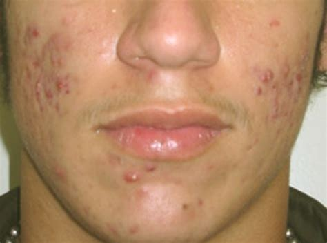 cystic acne picture 2