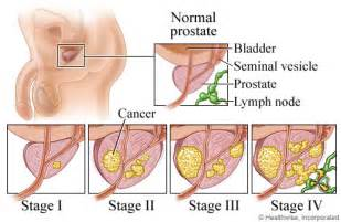 What are the stages of prostate cancer picture 2