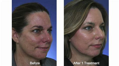 co2 laser acne treatment picture 13