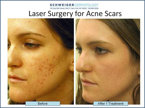 skin care for acne scars picture 7