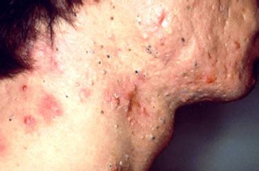 acne scar removal in bay area picture 2