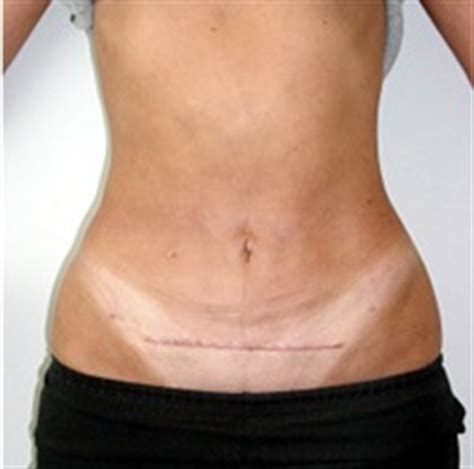 hysterctomy and aging skin picture 5
