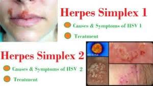 symptoms of oral herpes picture 10