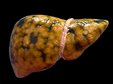 sintomas ng fatty liver picture 3