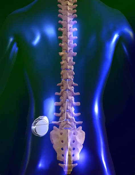 can you get pain in neck back and picture 8