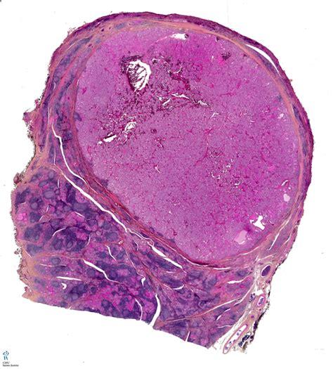 follicular cells in thyroid nodule picture 8