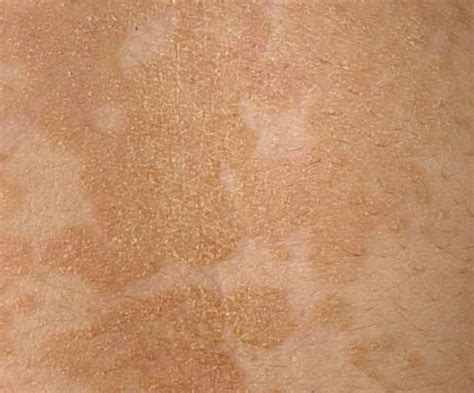 tea tree oil white patches on skin picture 9