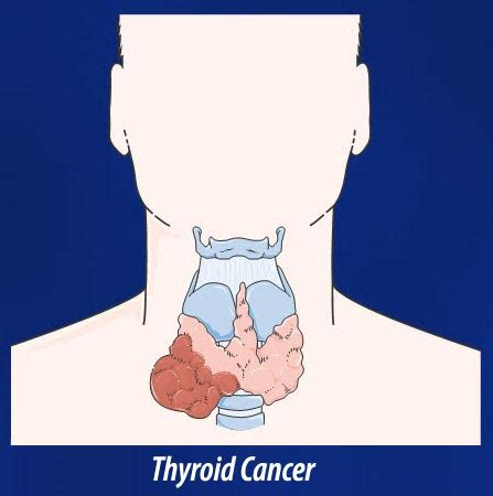 abnormal thyroid picture 9