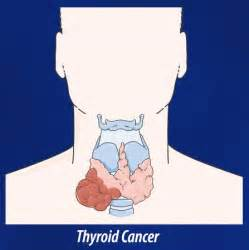 thyroid cancer treatments picture 17